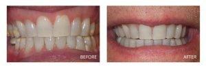 Dentist Ashburn, VA