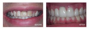 Ashburn Dentist