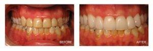 Ashburn, VA Dentist